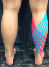 Kinesio Taping - Steelcity Physiotherapy & Wellness Centre - Sports Injury - Post Surgical Therapy - Selkirk Manitoba